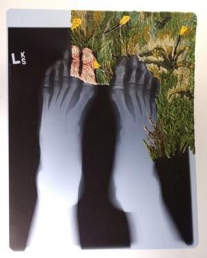 feet%2072